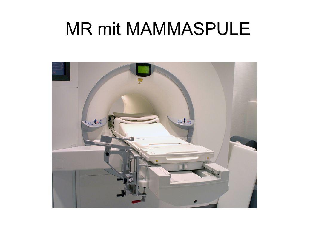 MR mit MAMMASPULE