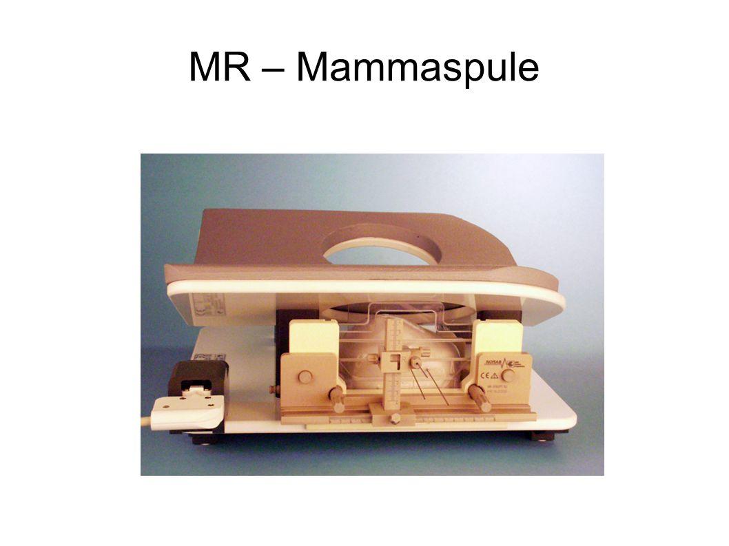 MR – Mammaspule