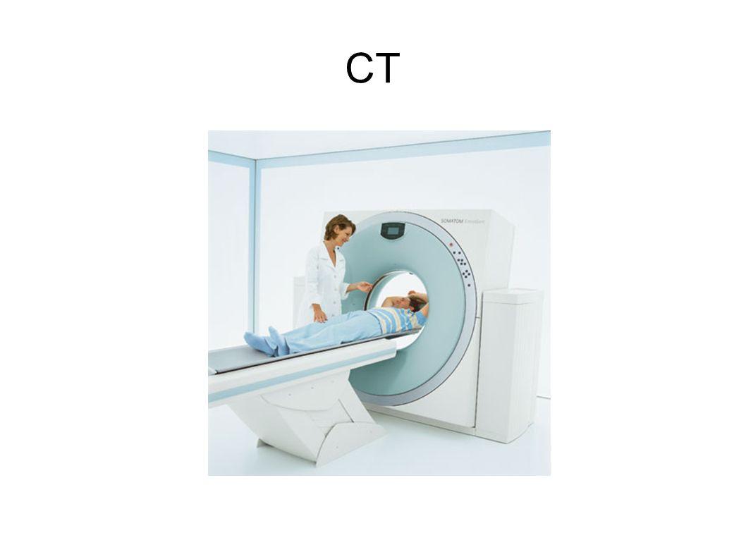 Bei der CT-Untersuchung wird ein mit einer klassischen Röntgenröhre und ein schmaler Röntgenstrahl (Fächerstrahl) erzeugt.