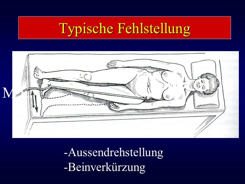 Typische Fehlstellung M.E. -Aussendrehstellung -Beinverkürzung