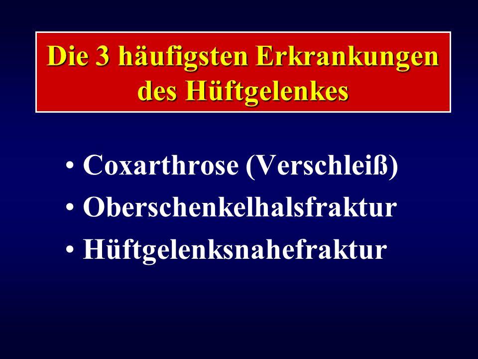 Coxarthrose (Verschleiß) Oberschenkelhalsfraktur Hüftgelenksnahefraktur Die 3 häufigsten Erkrankungen des Hüftgelenkes