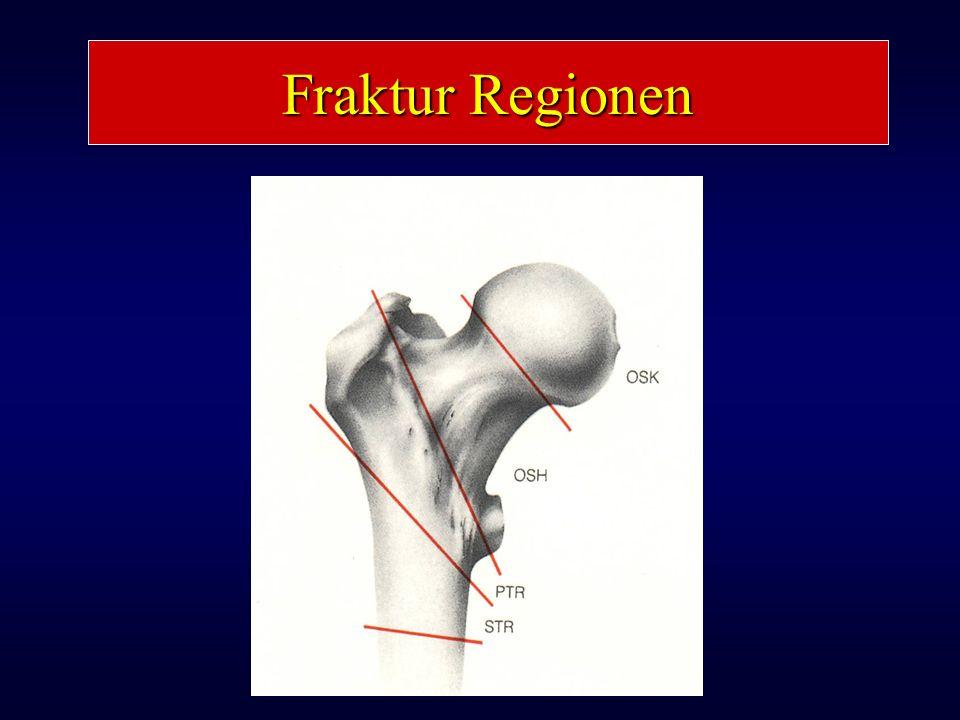 Fraktur Regionen