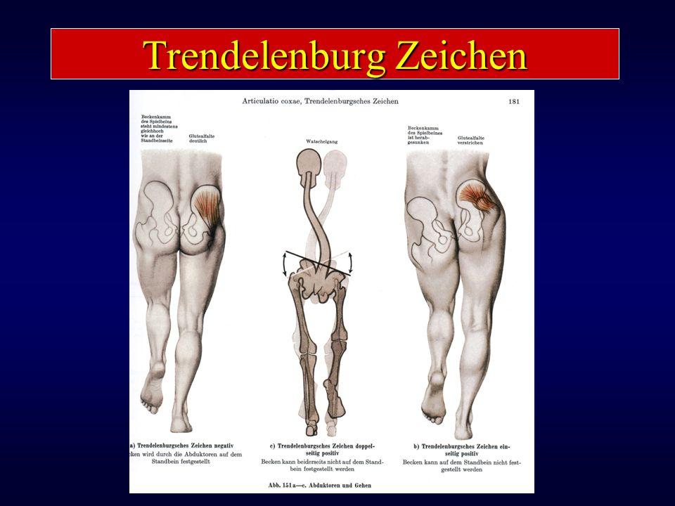 Trendelenburg Zeichen