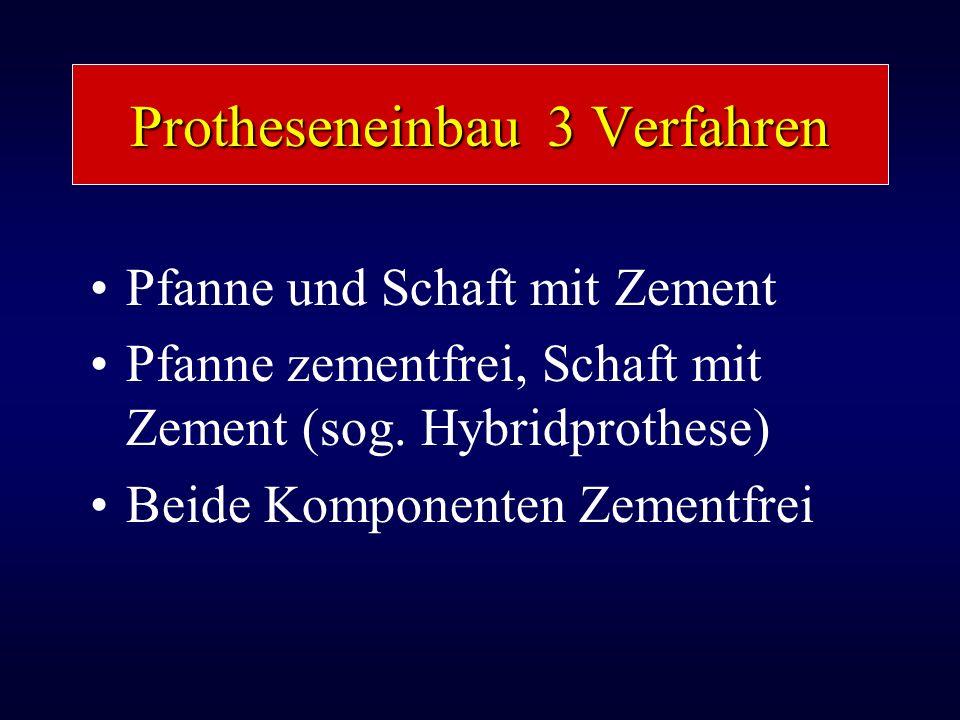 Protheseneinbau 3 Verfahren Pfanne und Schaft mit Zement Pfanne zementfrei, Schaft mit Zement (sog. Hybridprothese) Beide Komponenten Zementfrei