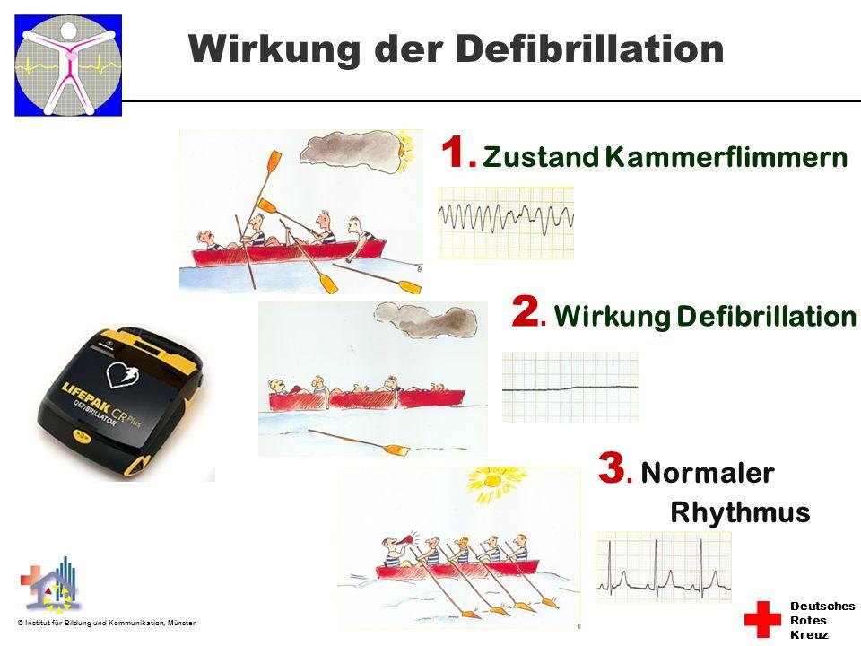 Deutsches Rotes Kreuz © Institut für Bildung und Kommunikation, Münster Wirkung der Defibrillation 1. Zustand Kammerflimmern 2. Wirkung Defibrillation