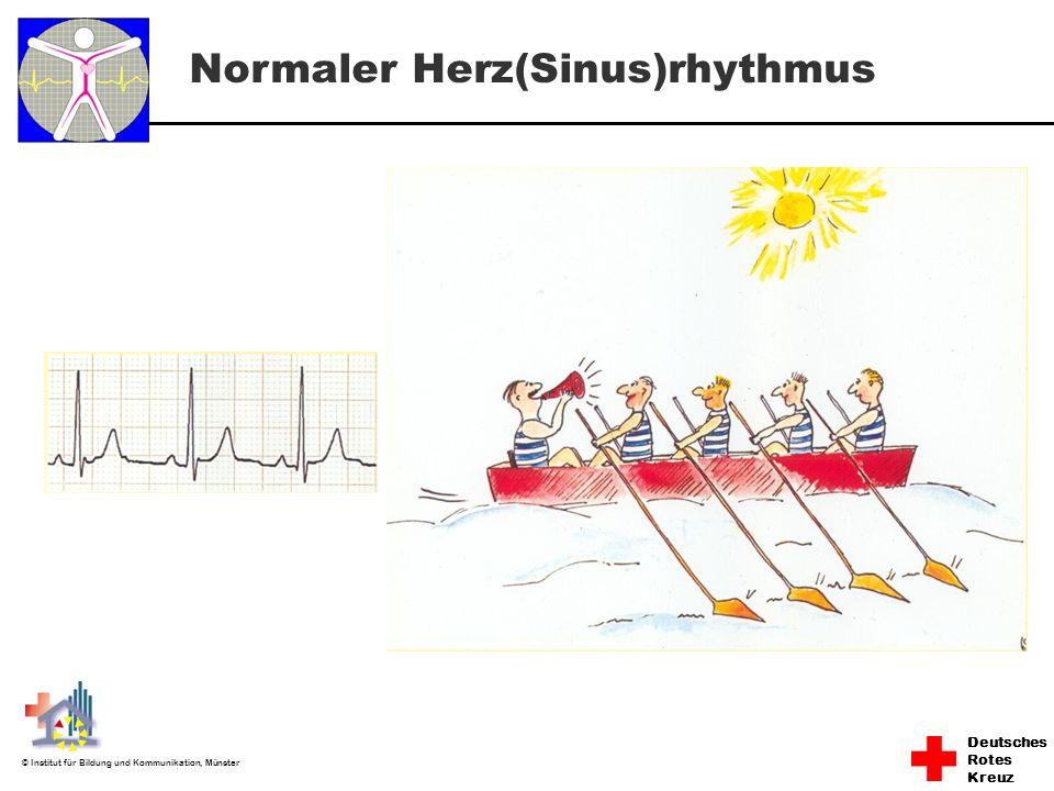 Deutsches Rotes Kreuz © Institut für Bildung und Kommunikation, Münster Normaler Herz(Sinus)rhythmus