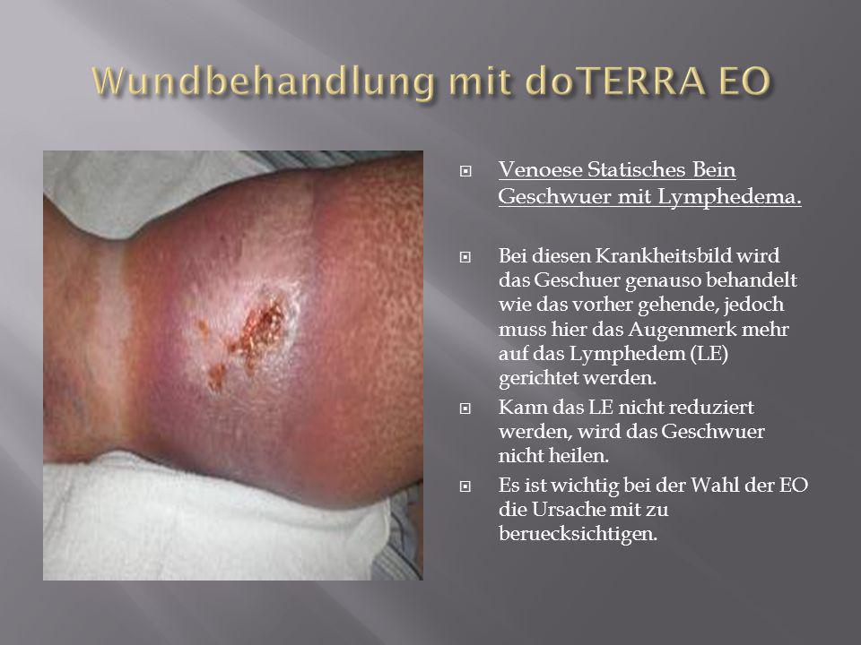 Venoese Statisches Bein Geschwuer mit Lymphedema. Bei diesen Krankheitsbild wird das Geschuer genauso behandelt wie das vorher gehende, jedoch muss hi