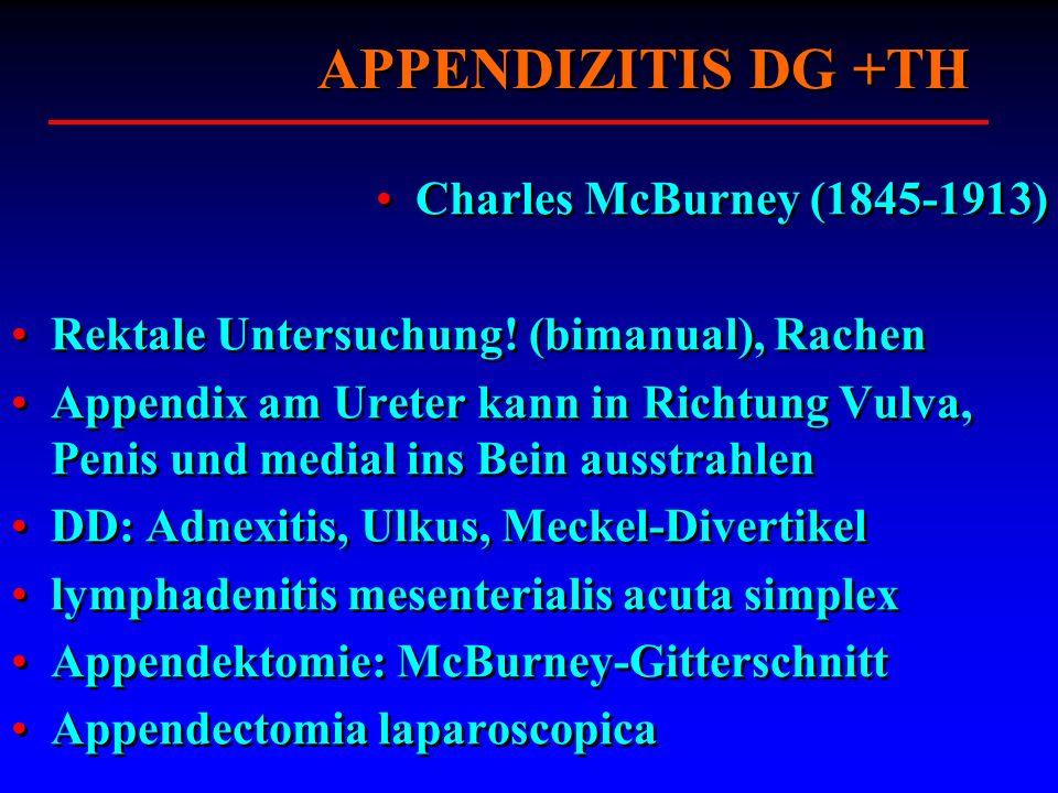 APPENDIZITIS DG +TH Charles McBurney (1845-1913) Rektale Untersuchung! (bimanual), Rachen Appendix am Ureter kann in Richtung Vulva, Penis und medial