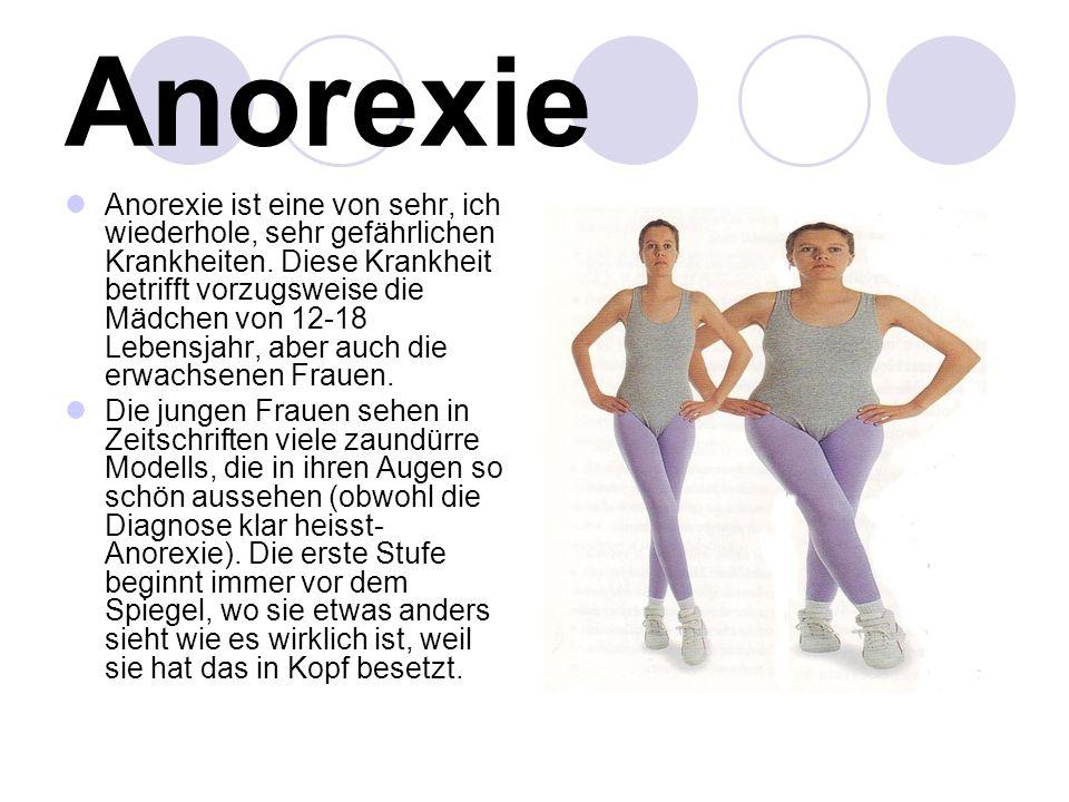 Anorexie Anorexie ist eine von sehr, ich wiederhole, sehr gefährlichen Krankheiten. Diese Krankheit betrifft vorzugsweise die Mädchen von 12-18 Lebens