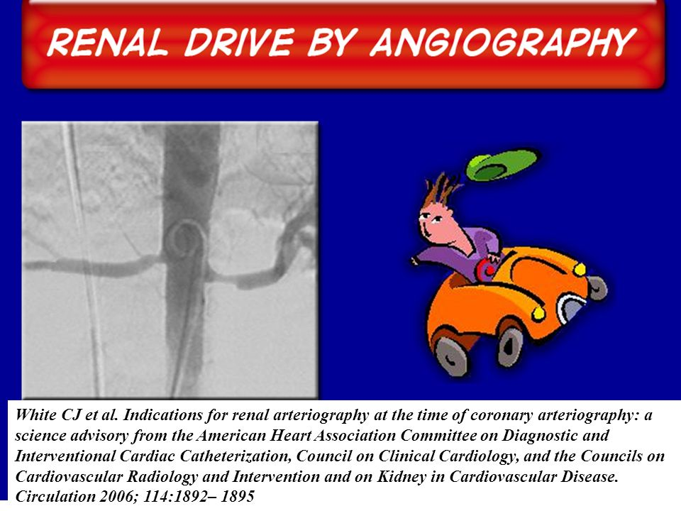 White CJ et al. Indications for renal arteriography at the time of coronary arteriography: a science advisory from the American Heart Association Comm