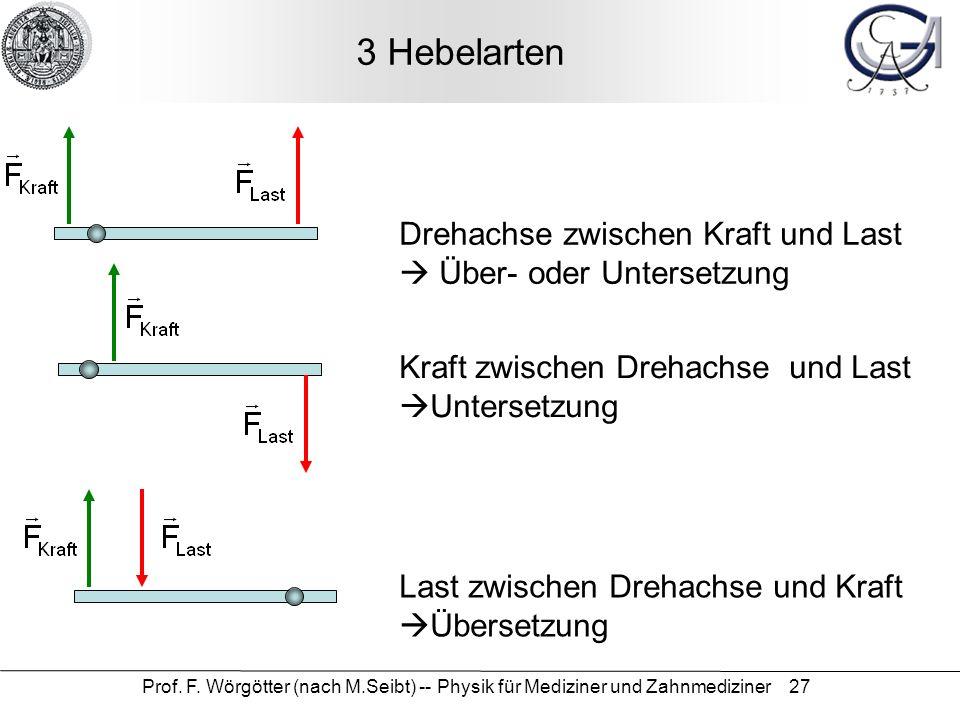 Prof. F. Wörgötter (nach M.Seibt) -- Physik für Mediziner und Zahnmediziner 27 3 Hebelarten Drehachse zwischen Kraft und Last Über- oder Untersetzung