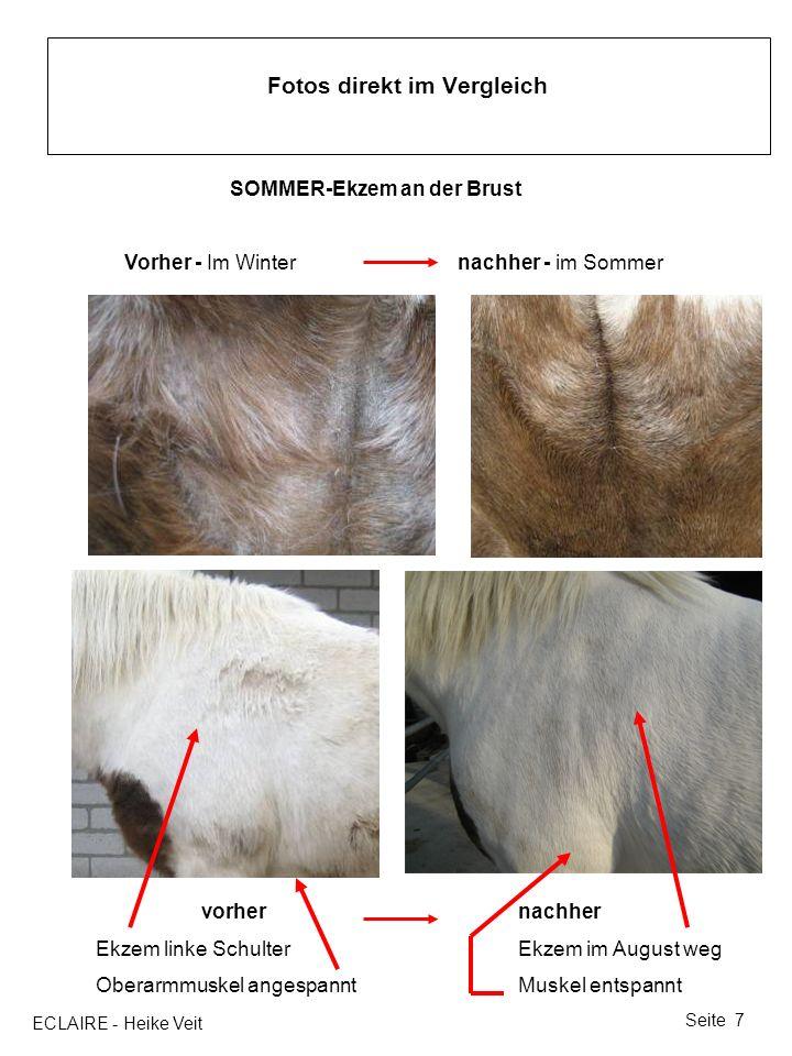 ECLAIRE - Heike Veit Seite 7 Fotos direkt im Vergleich SOMMER-Ekzem an der Brust Vorher - Im Winter nachher - im Sommer vorhernachher Ekzem linke Schu