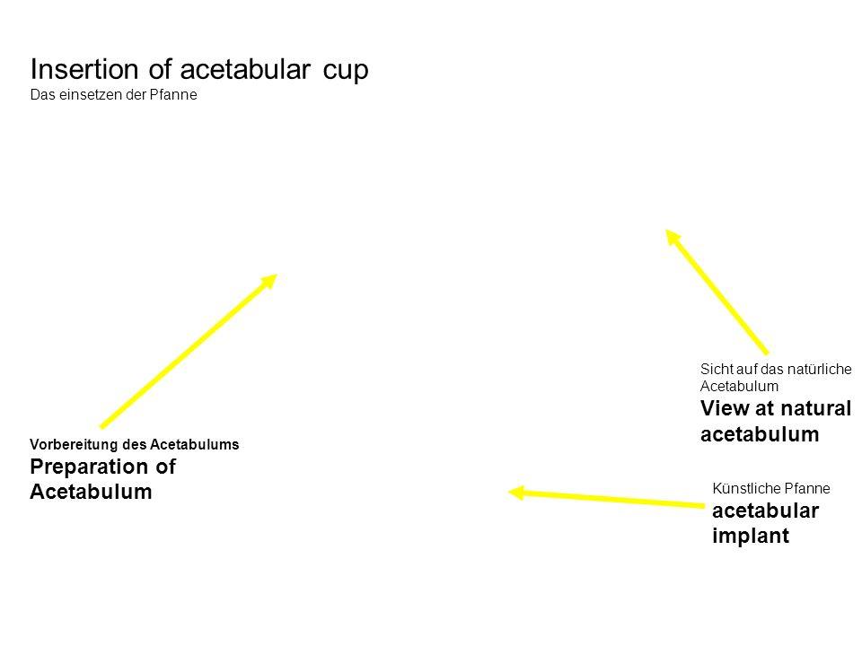 Insertion of acetabular cup Das einsetzen der Pfanne Vorbereitung des Acetabulums Preparation of Acetabulum Sicht auf das natürliche Acetabulum View a