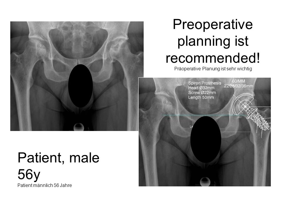 Preoperative planning ist recommended! Präoperative Planung ist sehr wichtig Patient, male 56y Patient männlich 56 Jahre