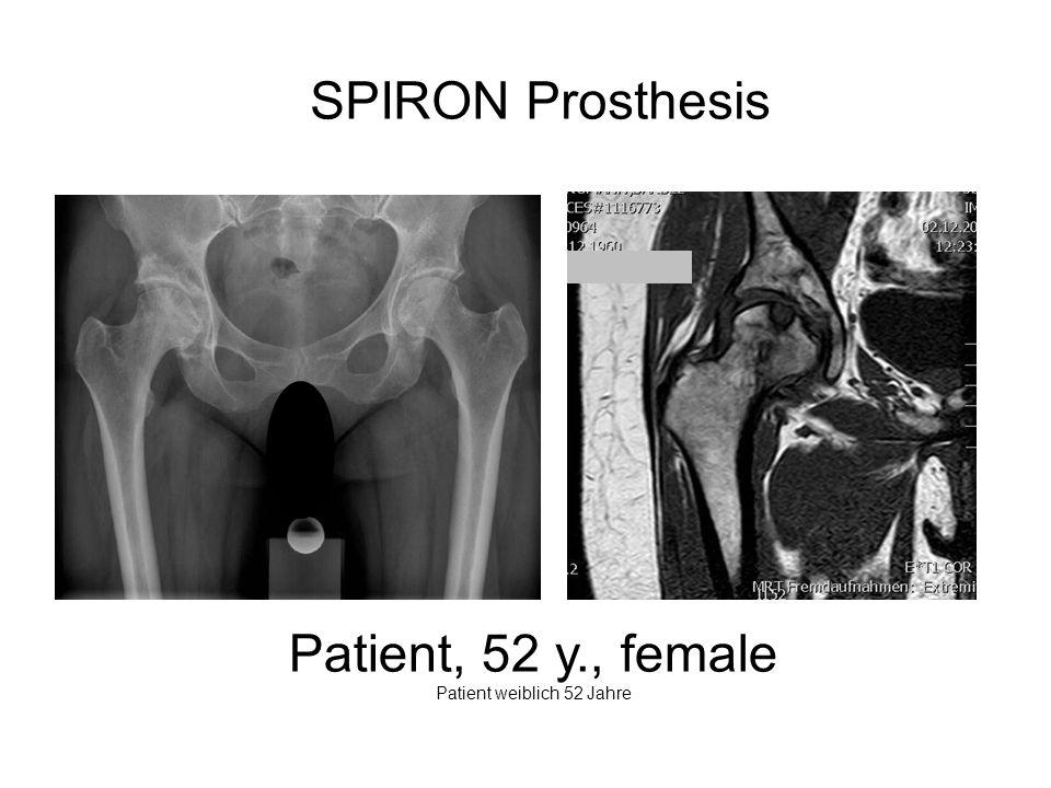 SPIRON Prosthesis Patient, 52 y., female Patient weiblich 52 Jahre
