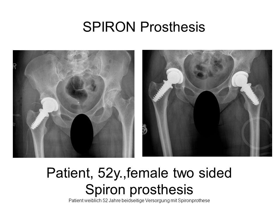 Patient, 52y.,female two sided Spiron prosthesis Patient weiblich 52 Jahre beidseitige Versorgung mit Spironprothese SPIRON Prosthesis