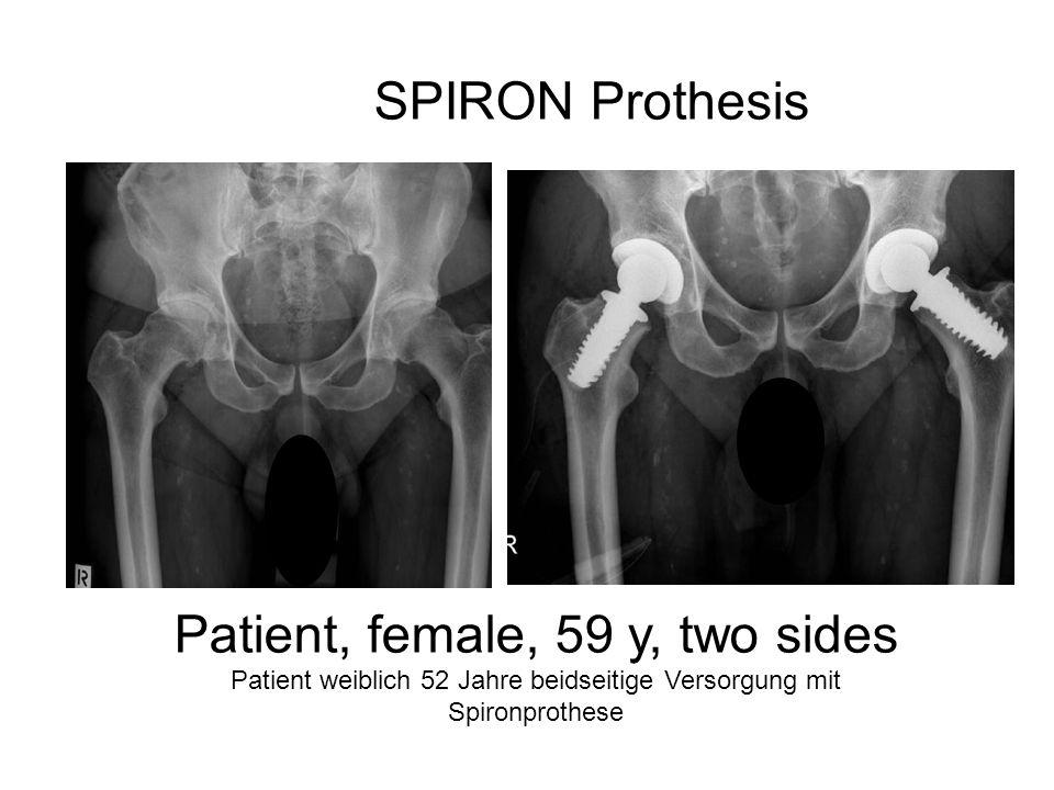 SPIRON Prothesis Patient, female, 59 y, two sides Patient weiblich 52 Jahre beidseitige Versorgung mit Spironprothese
