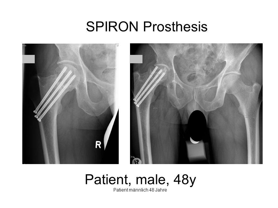 Patient, male, 48y Patient männlich 48 Jahre
