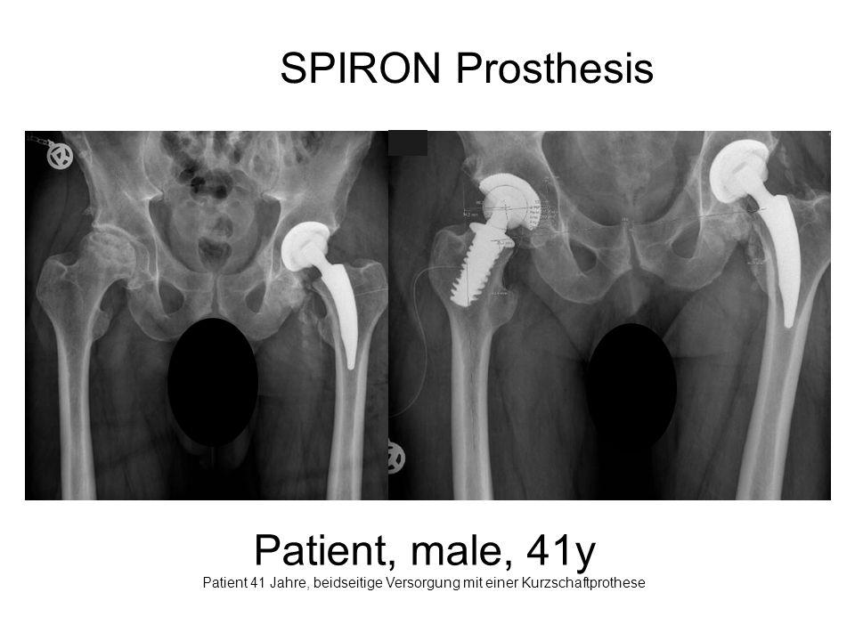 SPIRON Prosthesis Patient, male, 41y Patient 41 Jahre, beidseitige Versorgung mit einer Kurzschaftprothese