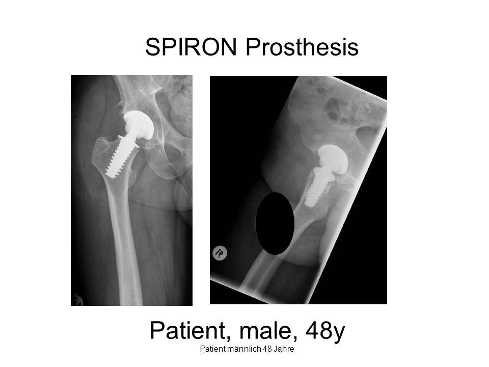 SPIRON Prosthesis Patient, male, 48y Patient männlich 48 Jahre