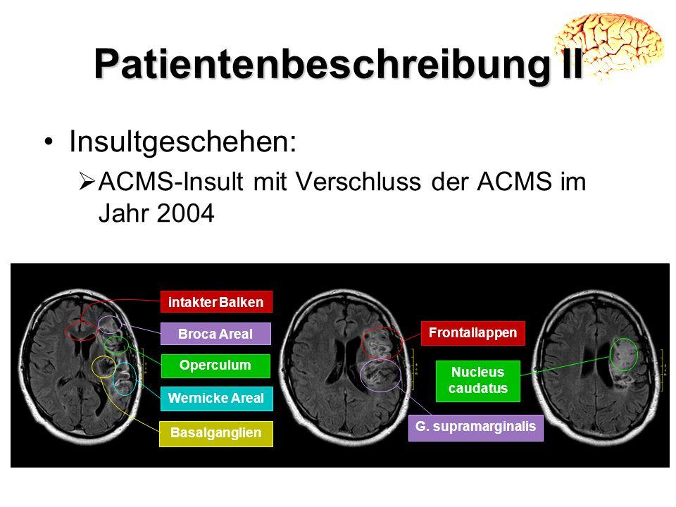 Patientenbeschreibung II Insultgeschehen: ACMS-Insult mit Verschluss der ACMS im Jahr 2004 Frontallappen G. supramarginalis Nucleus caudatus intakter