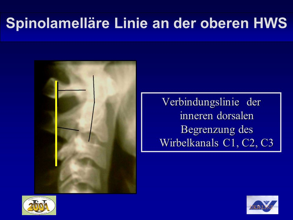 UKH LINZ Zusammenfassung: Die spinolamelläre Linie C1- C3 findet sich in 54% der Fälle ohne Abweichung.