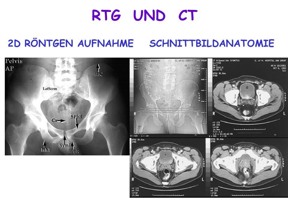 RTG UND CT 2D RÖNTGEN AUFNAHMESCHNITTBILDANATOMIE