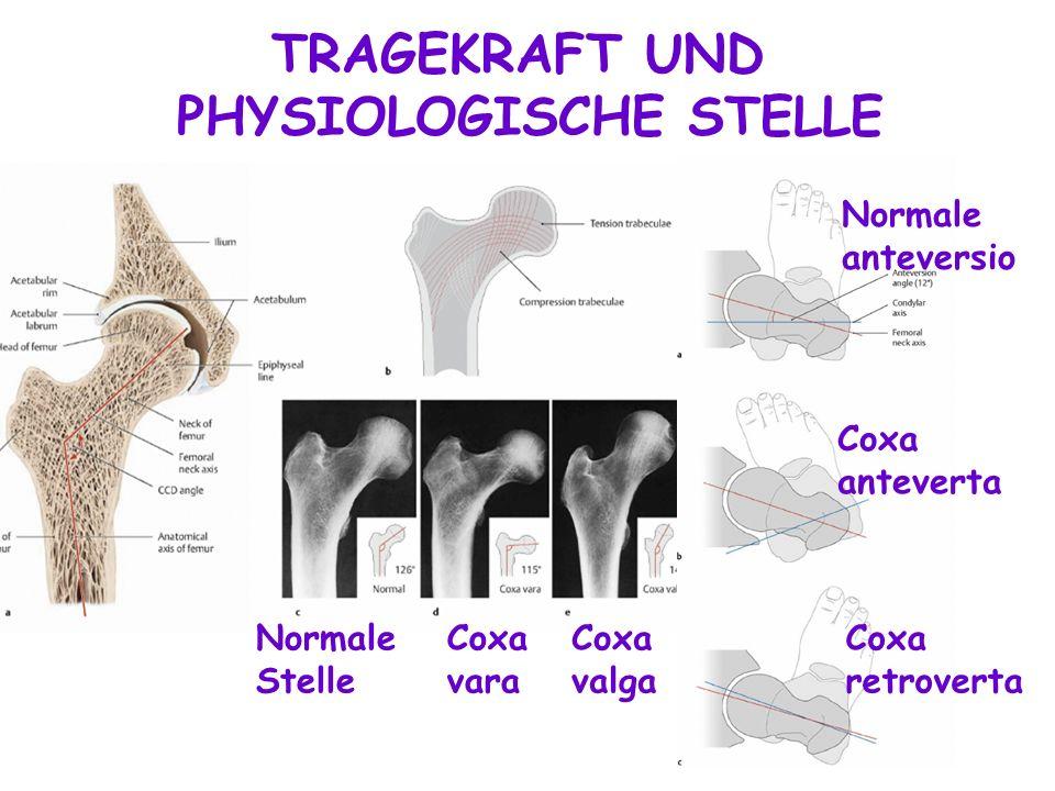 TRAGEKRAFT UND PHYSIOLOGISCHE STELLE Coxa vara Coxa valga Coxa retroverta Coxa anteverta Normale anteversio Normale Stelle