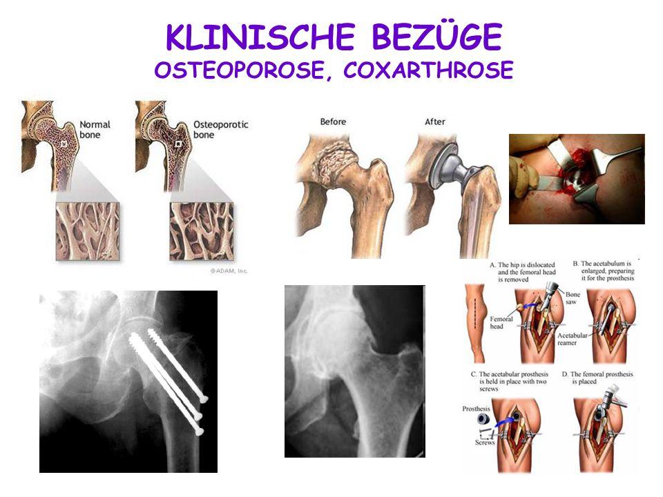 KLINISCHE BEZÜGE OSTEOPOROSE, COXARTHROSE