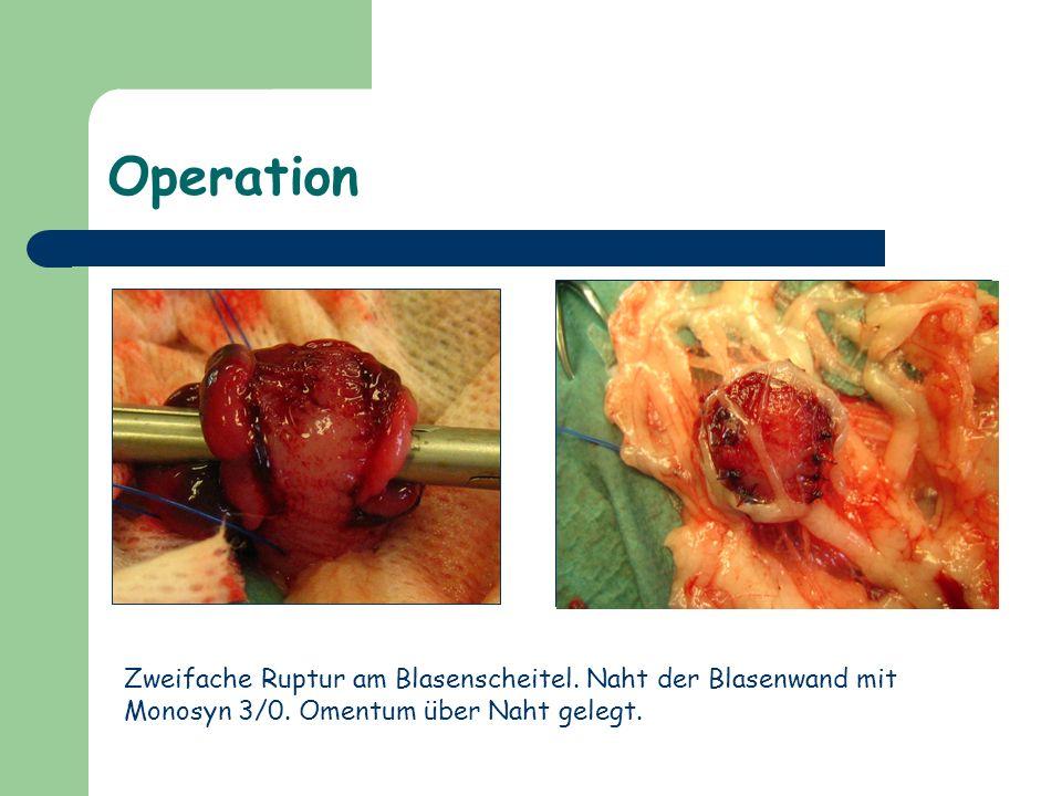 Operation Zweifache Ruptur am Blasenscheitel. Naht der Blasenwand mit Monosyn 3/0. Omentum über Naht gelegt.