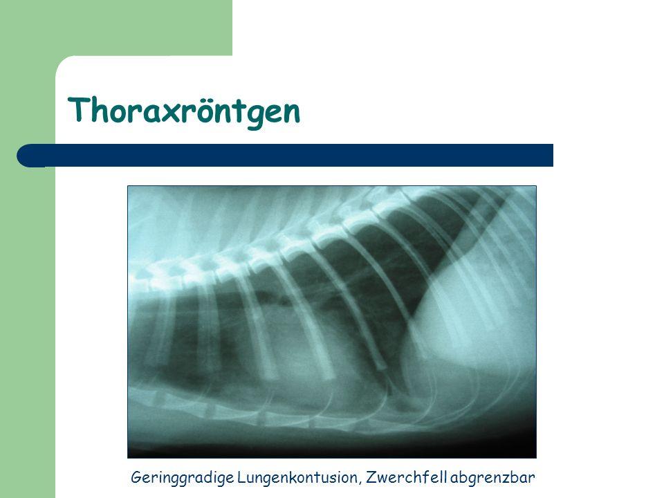 Abdomenröntgen Verminderte Detailerkennbarkeit im gesamten Abdomen