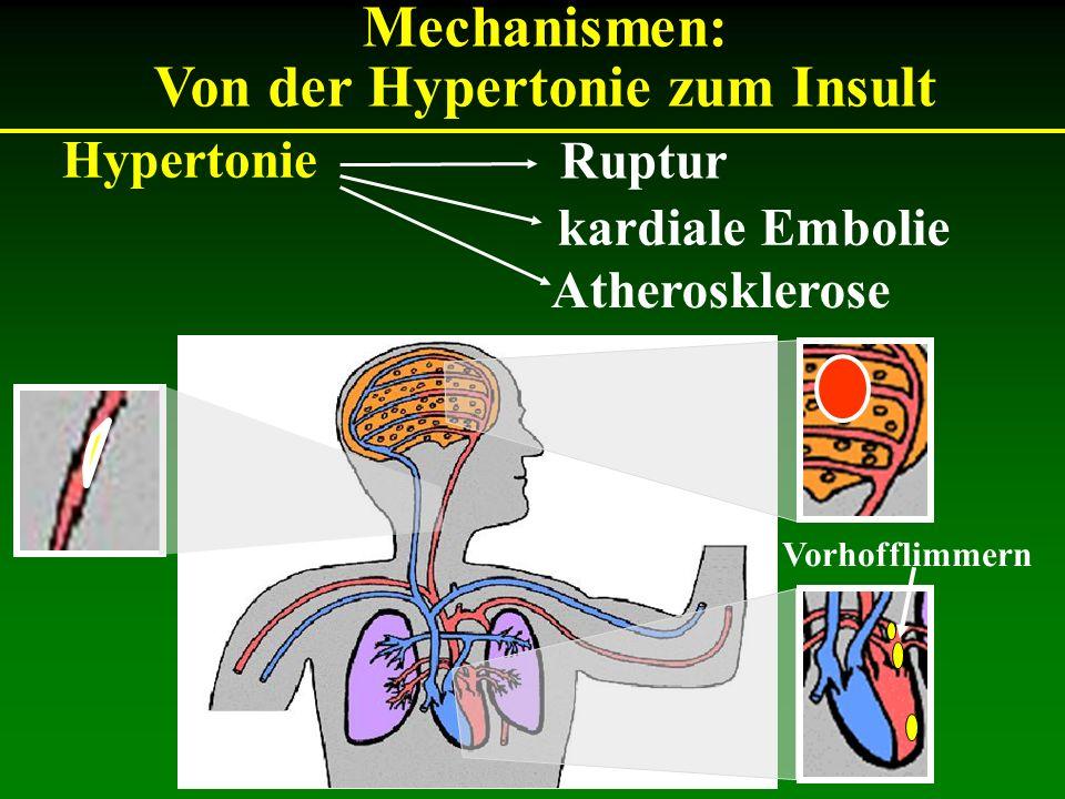 Hypertonie Mechanismen: Von der Hypertonie zum Insult kardiale Embolie Atherosklerose Ruptur Vorhofflimmern