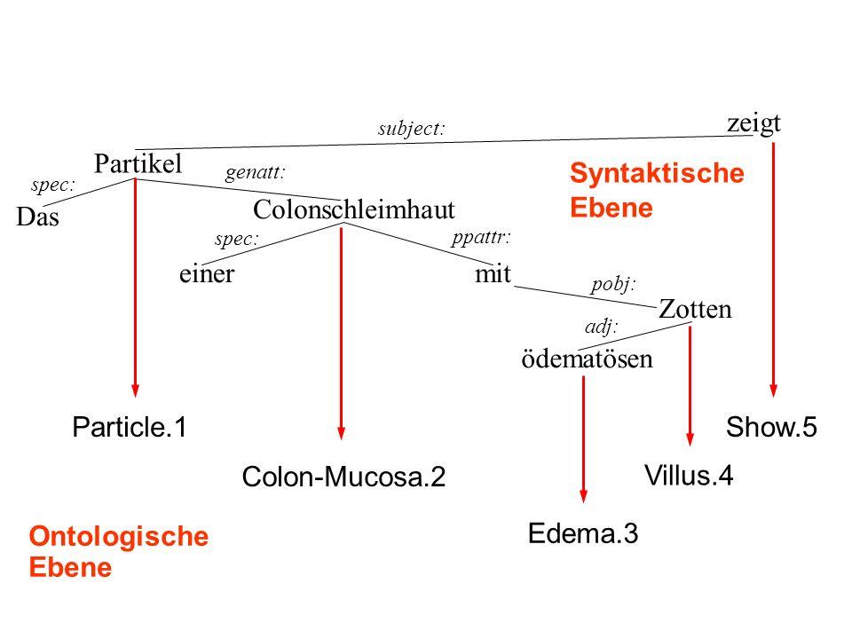 Das Partikel spec: einer Colonschleimhaut mit ödematösen Zotten genatt: spec: ppattr: pobj: adj: Syntaktische Ebene Edema.3 Villus.4 zeigt subject: Particle.1 Ontologische Ebene Show.5 Colon-Mucosa.2