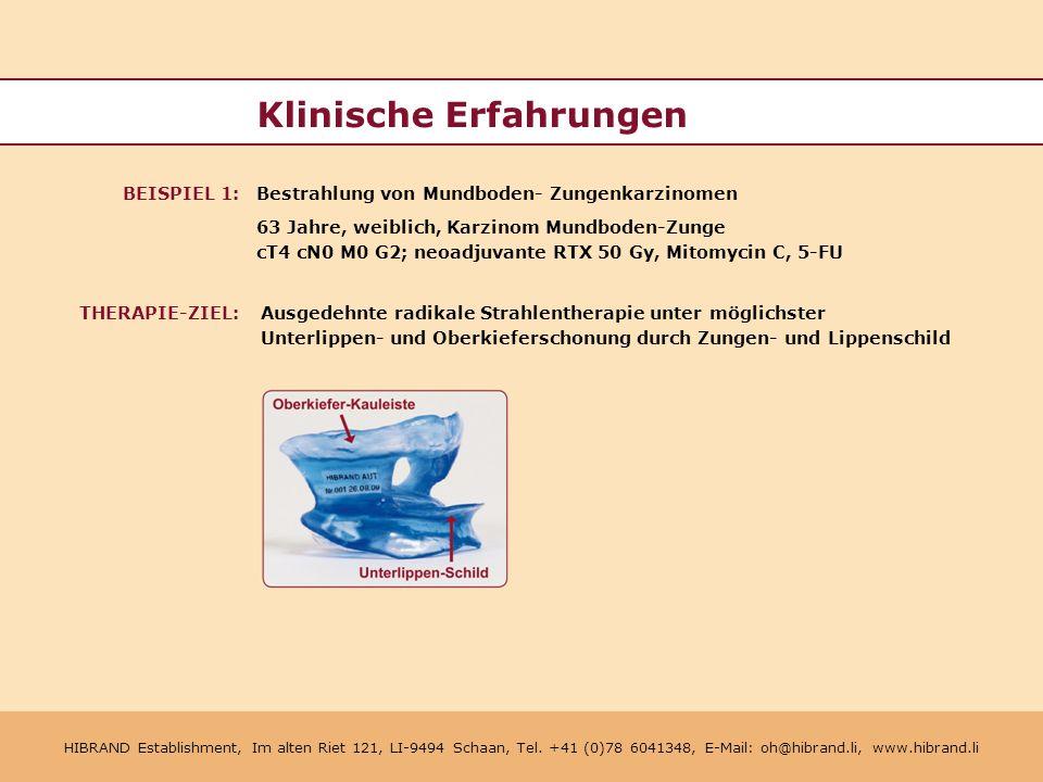 HIBRAND Establishment, Im alten Riet 121, LI-9494 Schaan, Tel.