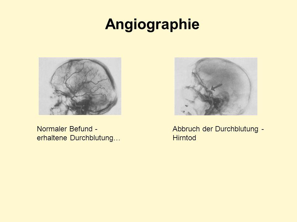 Angiographie Normaler Befund - erhaltene Durchblutung… Abbruch der Durchblutung - Hirntod