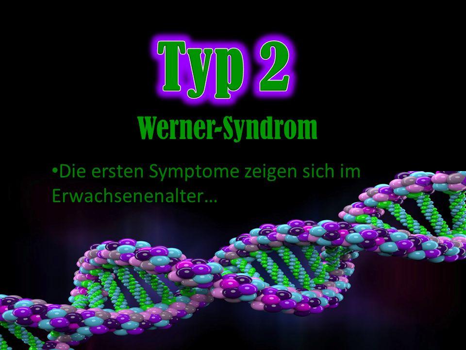Die ersten Symptome zeigen sich im Erwachsenenalter… Werner-Syndrom