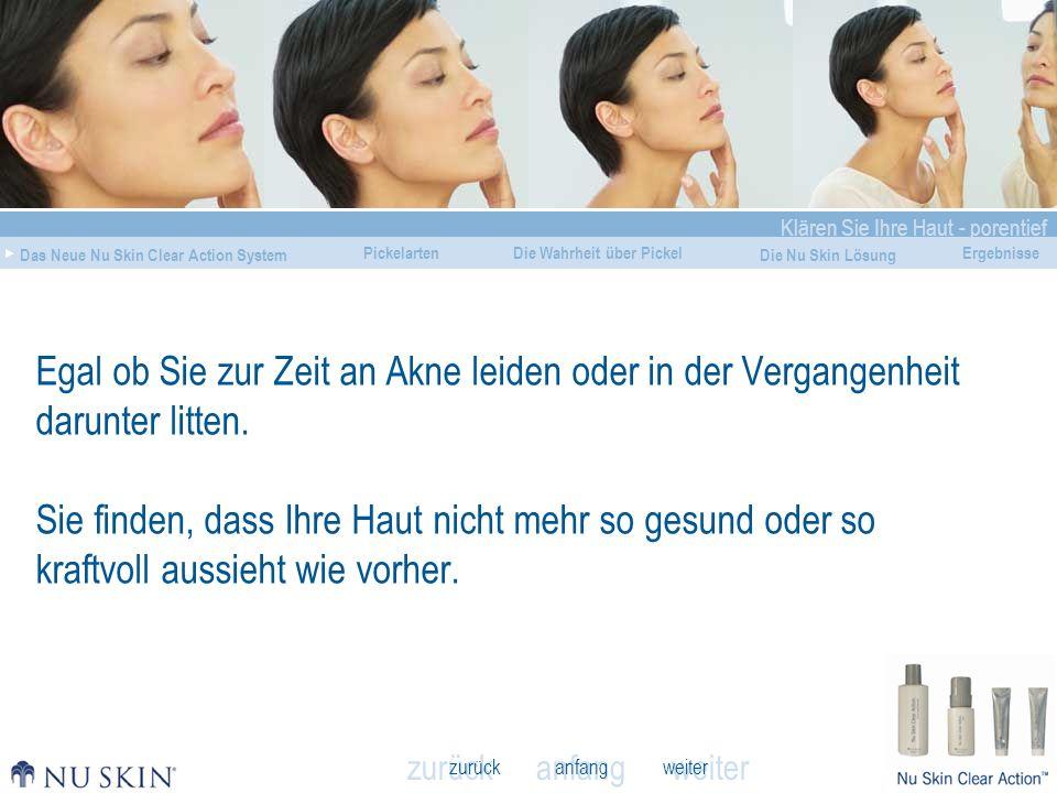 anfang Klären Sie Ihre Haut - porentief Das Neue Nu Skin Clear Action System Die Wahrheit über Pickel Die Nu Skin Lösung Ergebnisse zurück weiter Pickelarten VORHERNACHHER Beurteilungen von Anwendern Meine Haut sieht toll aus.