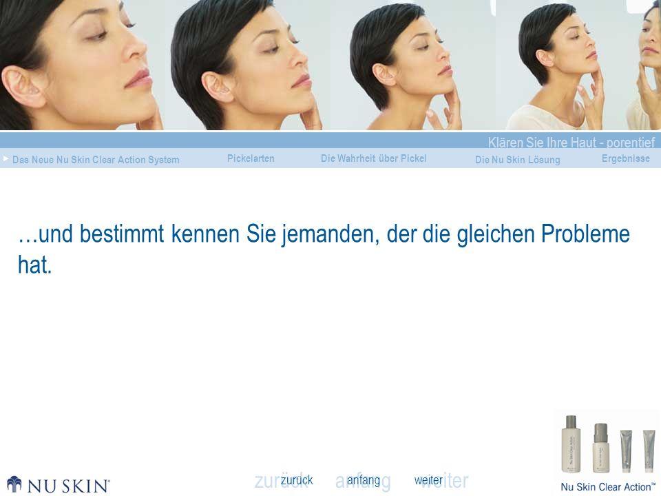 anfang Klären Sie Ihre Haut - porentief Das Neue Nu Skin Clear Action System Die Wahrheit über Pickel Die Nu Skin Lösung Ergebnisse zurück weiter Pickelarten 8 von 10 Personen leiden zu irgendeinem Zeitpunkt ihres Lebens unter Pickelausbrüchen.