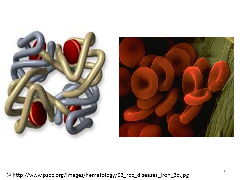 Sichelzellenanämie Bei den Betroffenen verformen sich die roten Blutzellen zu sichelformigen Gebilden und verstopfen kleine Blutgef ä se.