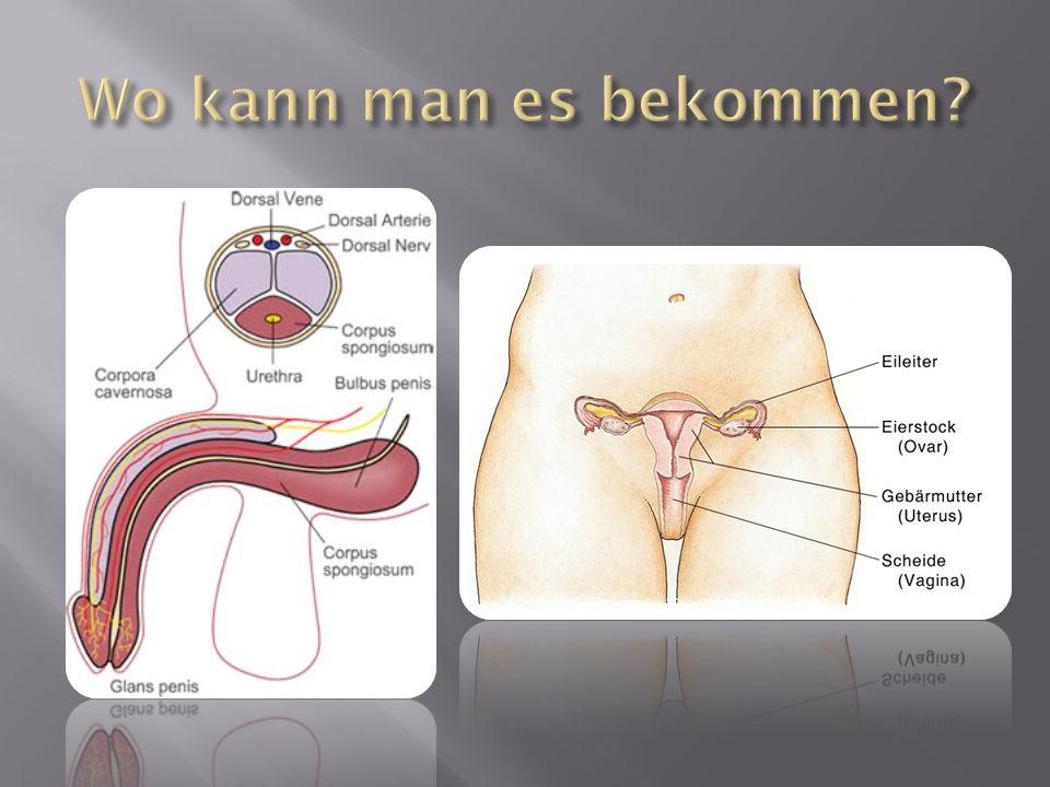 Stadium 1 : Am Übertragungsort, meistens Penis, Hodensack, Venuslippen oder Scheide, Darmausgang oder Mund entwickelt sich etwa drei Wochen nach der Ansteckung ein Knoten oder ein schmerzloses Geschwür.Penis HodensackVenuslippenScheide