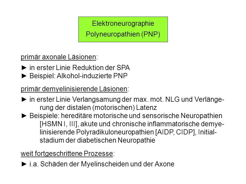 Elektroneurographie Polyneuropathien (PNP) primär axonale Läsionen: in erster Linie Reduktion der SPA Beispiel: Alkohol-induzierte PNP primär demyelin