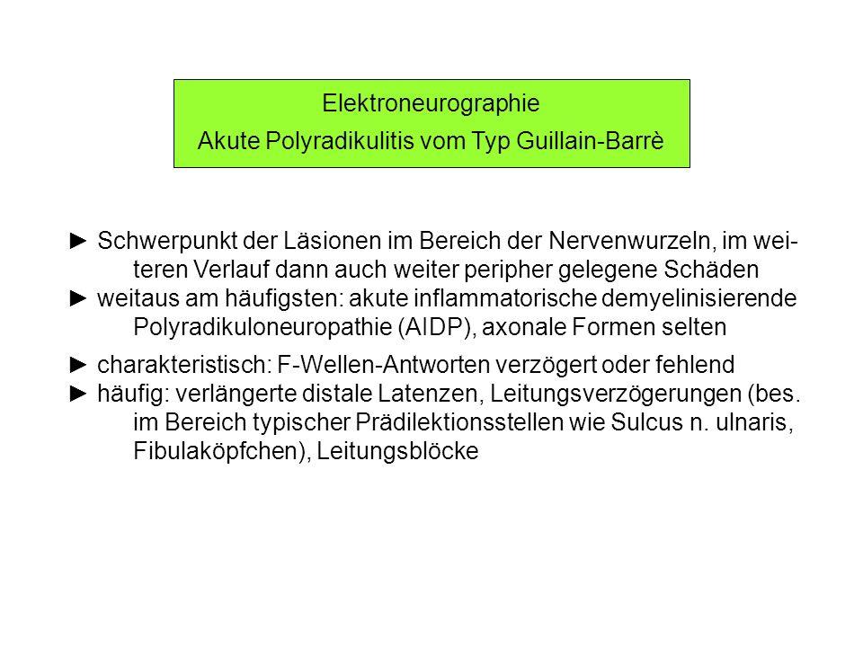 Elektroneurographie Akute Polyradikulitis vom Typ Guillain-Barrè Schwerpunkt der Läsionen im Bereich der Nervenwurzeln, im wei- teren Verlauf dann auc