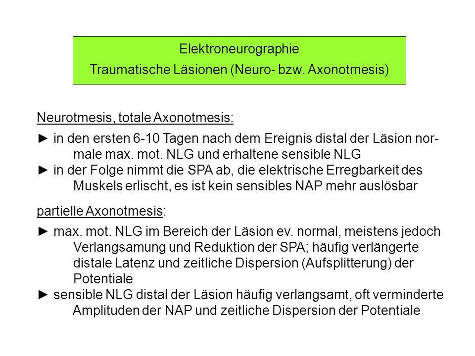 Elektroneurographie Traumatische Läsionen (Neurapraxien) (1) vollständige Neurapraxie (selten): durch Reizung proximal der Läsion ist kein Muskelaktionspotential auslösbar (kompletter Leitungsblock) distal der Läsion normale max.