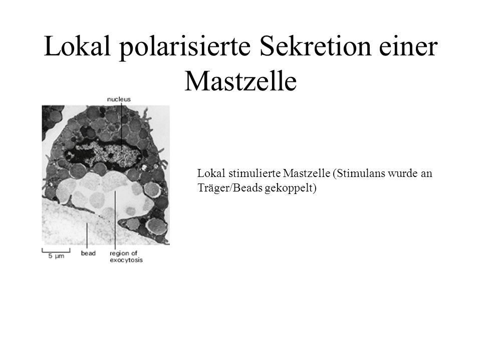 Lokal polarisierte Sekretion einer Mastzelle Lokal stimulierte Mastzelle (Stimulans wurde an Träger/Beads gekoppelt)