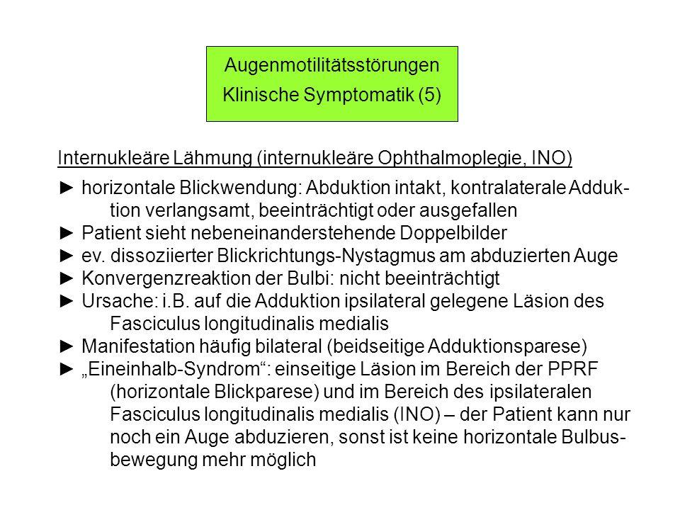 Internukleäre Lähmung (internukleäre Ophthalmoplegie, INO) horizontale Blickwendung: Abduktion intakt, kontralaterale Adduk- tion verlangsamt, beeinträchtigt oder ausgefallen Patient sieht nebeneinanderstehende Doppelbilder ev.