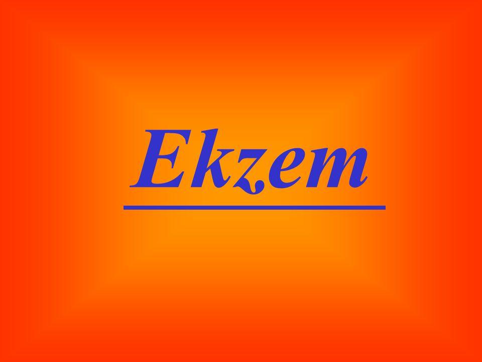 Ekzem