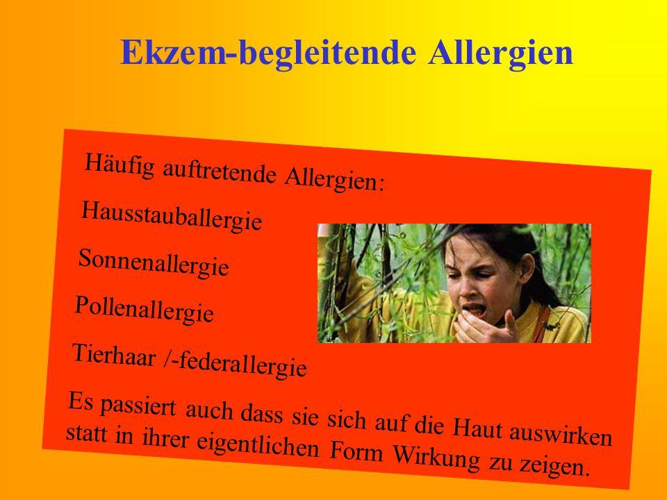 Ekzem-begleitende Allergien Häufig auftretende Allergien: Hausstauballergie Sonnenallergie Pollenallergie Tierhaar /-federallergie Es passiert auch da
