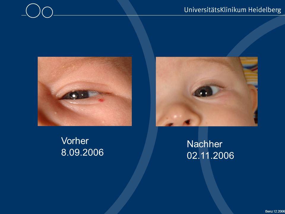 Benz 12.2006 Regressionsphase nach durchgeführter Lasertherapie (interstitiell / transkutan) Thorax / Unterarm Vorher 27.09.2005 Thorax / Unterarm Nachher 28.11.2006