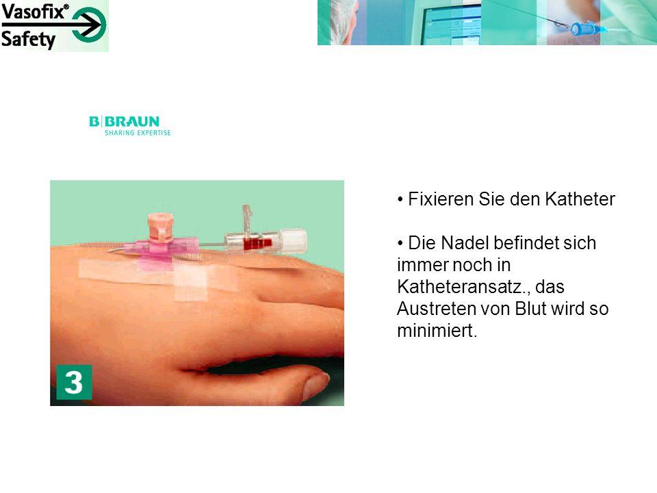 Fixieren Sie den Katheter Die Nadel befindet sich immer noch in Katheteransatz., das Austreten von Blut wird so minimiert.