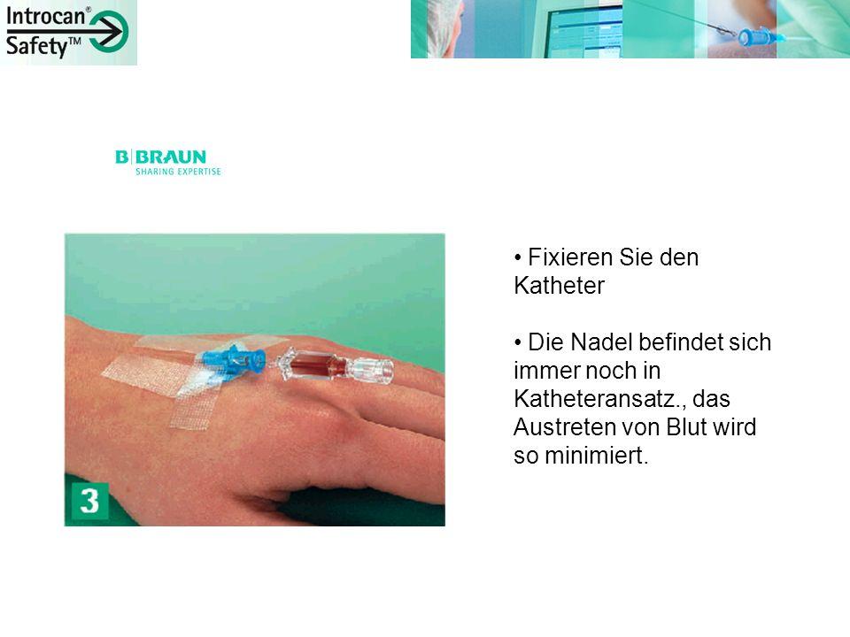 Unterbrechen Sie den Blutrückfluss mittels V-Griff.